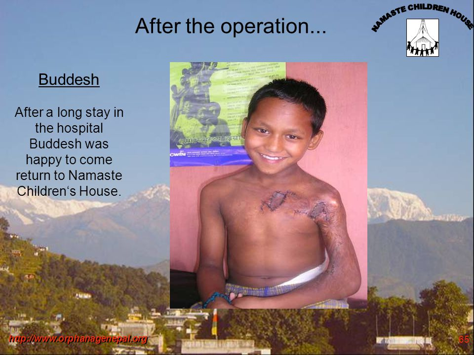http://www.orphanagenepal.org 65 After the operation... Buddesh After a long stay in the hospital Buddesh was happy to come return to Namaste Children