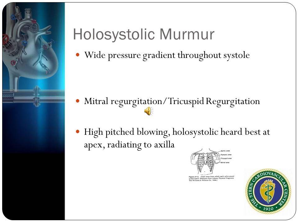 Holosystolic Murmur Wide pressure gradient throughout systole Mitral regurgitation/Tricuspid Regurgitation High pitched blowing, holosystolic heard be