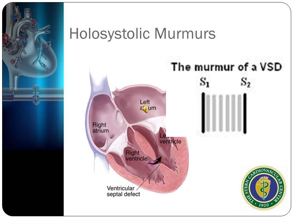 Holosystolic Murmurs