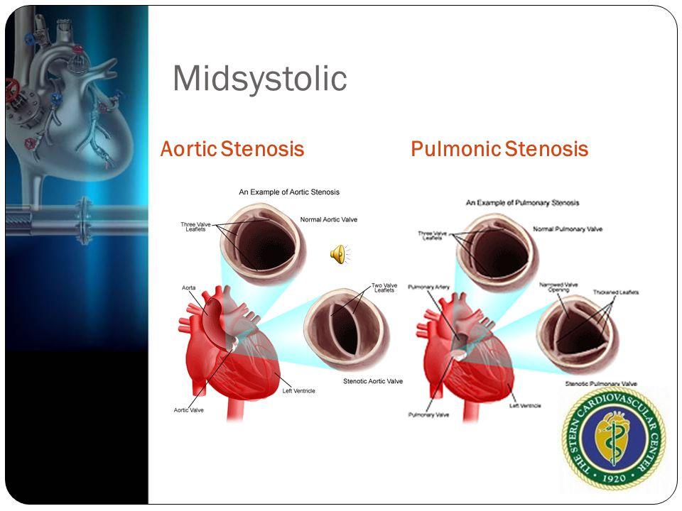 Midsystolic Aortic StenosisPulmonic Stenosis