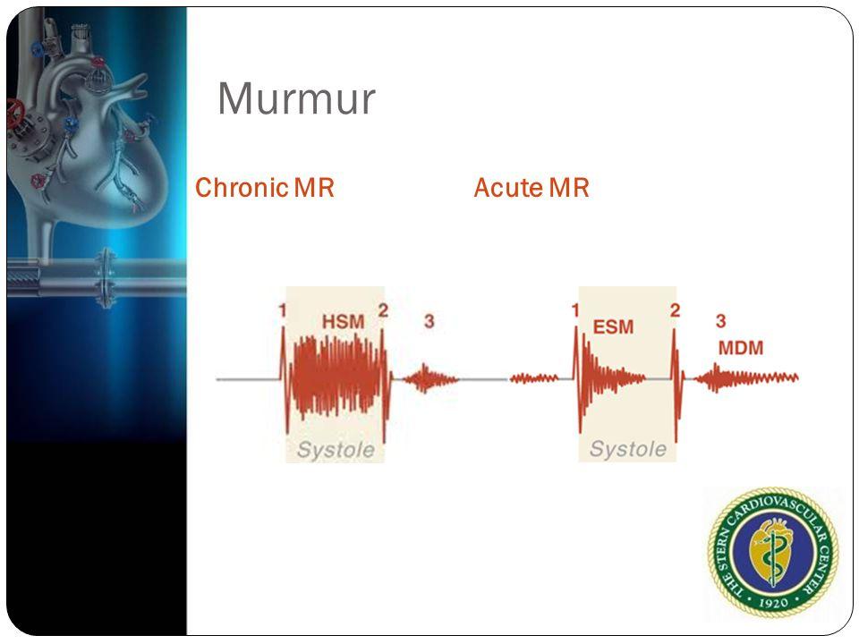 Murmur Chronic MRAcute MR