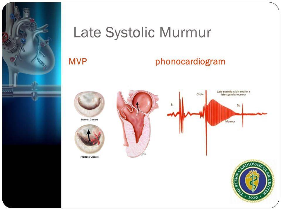 Late Systolic Murmur MVPphonocardiogram
