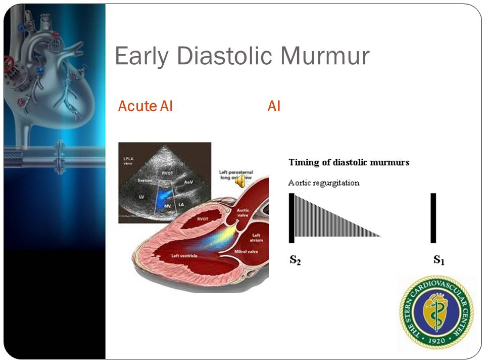 Early Diastolic Murmur Acute AIAI