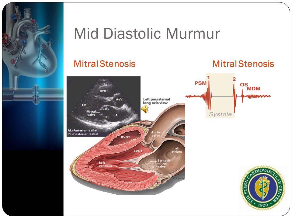 Mid Diastolic Murmur Mitral Stenosis