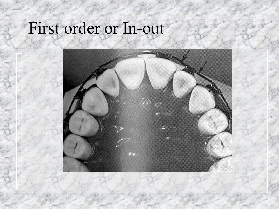 First order or In-out