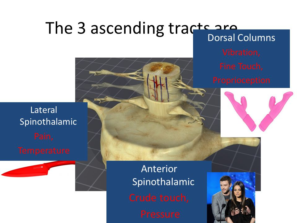 The 3 ascending tracts are... Anterior Spinothalamic Crude touch, Pressure Lateral Spinothalamic Pain, Temperature Dorsal Columns Vibration, Fine Touc