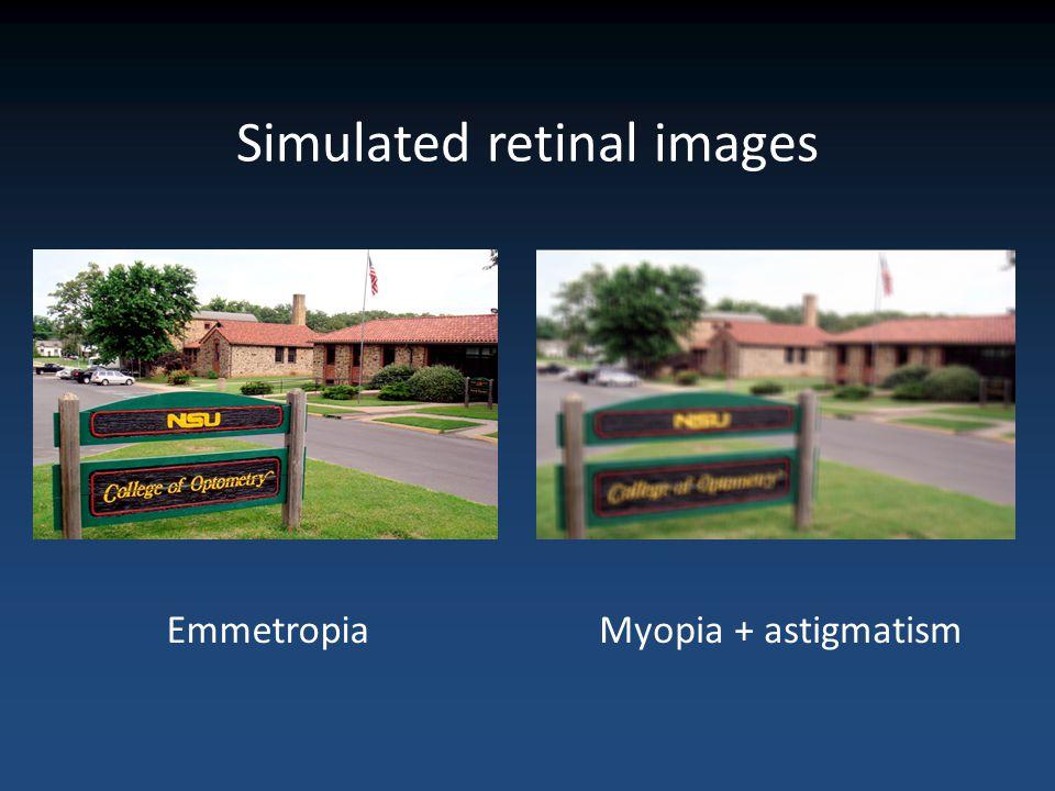 Simulated retinal images EmmetropiaMyopia + astigmatism