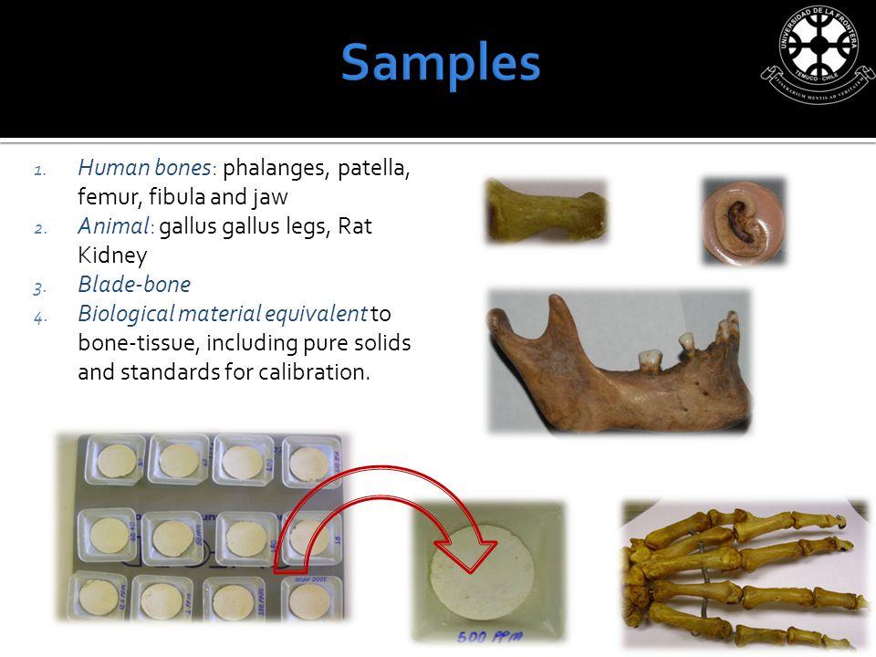 1. Human bones: phalanges, patella, femur, fibula and jaw 2.