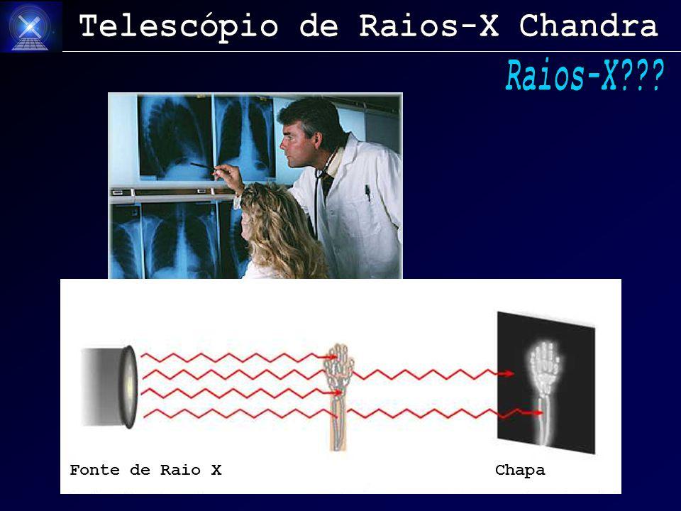 Fonte de Raio X Chapa