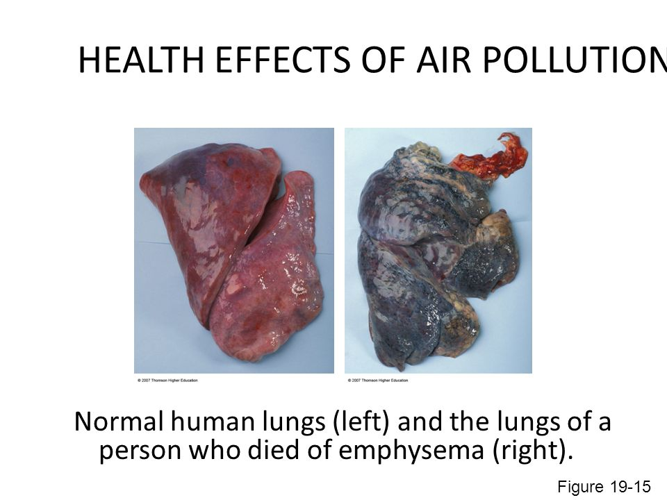 HEALTH EFFECTS OF AIR POLLUTION Normal human lungs (left) and the lungs of a person who died of emphysema (right).