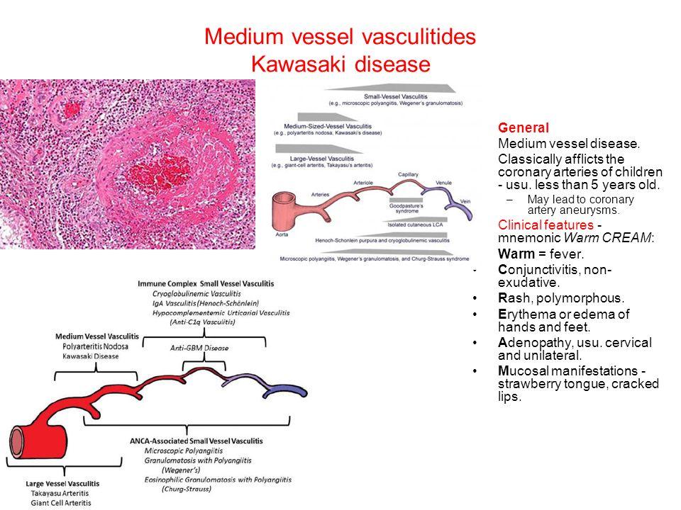 kawasaki disease. kd was initially described in the medical
