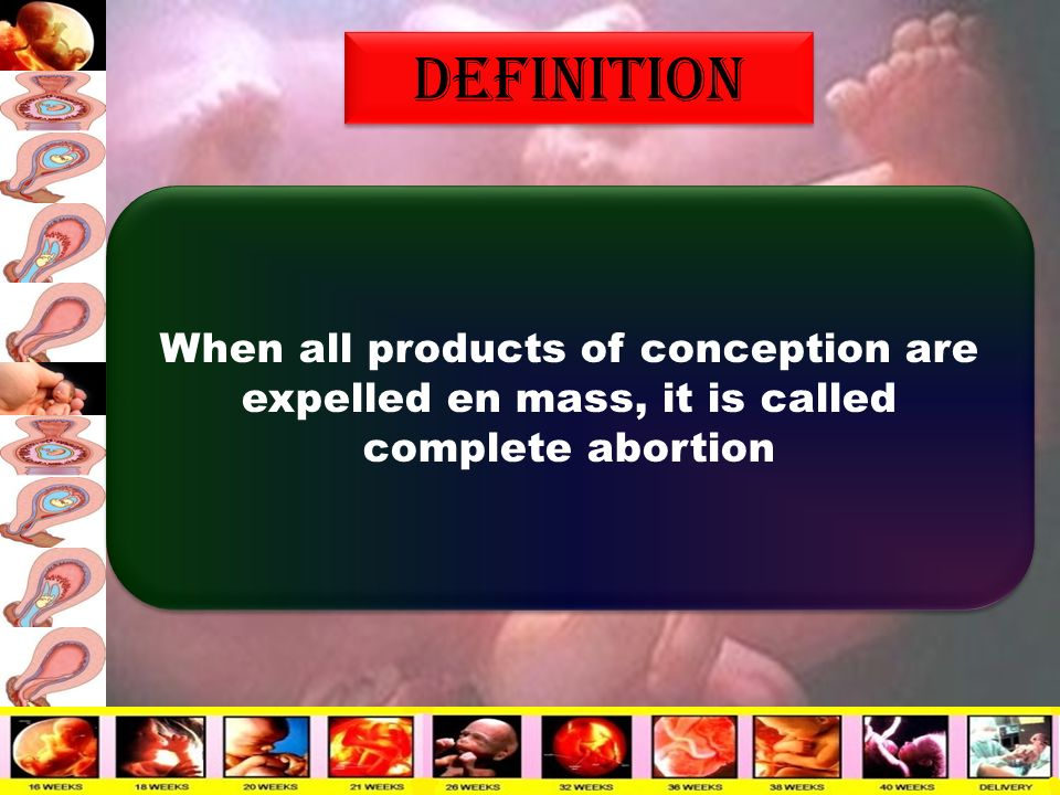 38 Definition When All Products Of Conception Are Expelled En Mass, It Is  Called Complete Abortion