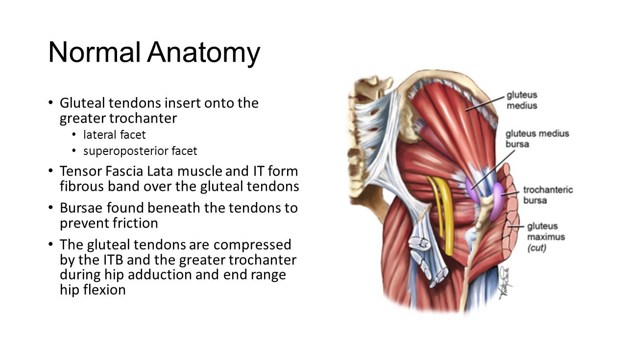 Gluteal Tendinopathy Normal Anatomy Gluteal Tendons Insert Onto The