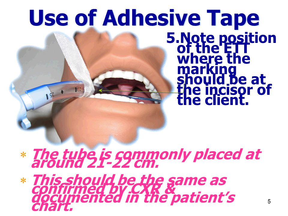 5 Use of Adhesive Tape 5.Note position of the ETT where the marking should be at the incisor of the client.