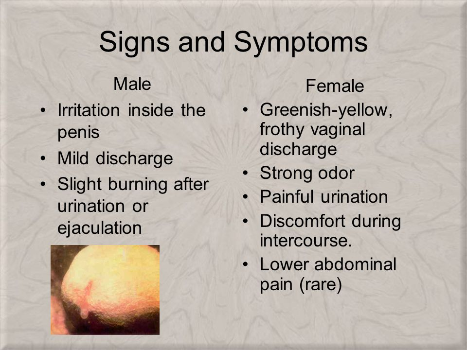 clear discharge after urination male