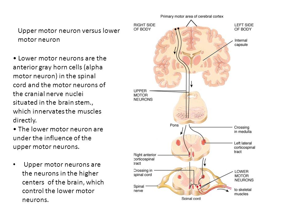 Upper Motor Neuron Doritrcatodos