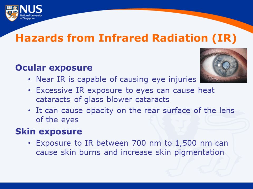Hazards from Infrared Radiation (IR) Ocular exposure Near IR is capable of causing eye injuries Excessive IR exposure to eyes can cause heat cataracts of glass blower cataracts It can cause opacity on the rear surface of the lens of the eyes Skin exposure Exposure to IR between 700 nm to 1,500 nm can cause skin burns and increase skin pigmentation