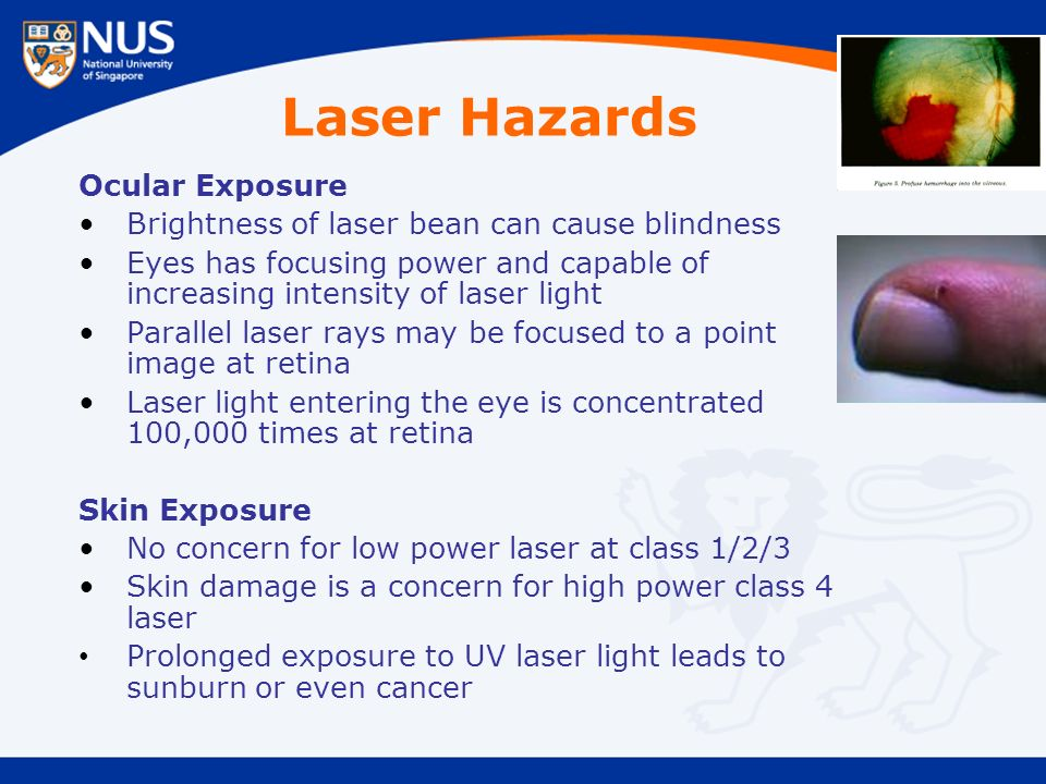 Laser Hazards Ocular Exposure Brightness of laser bean can cause blindness Eyes has focusing power and capable of increasing intensity of laser light Parallel laser rays may be focused to a point image at retina Laser light entering the eye is concentrated 100,000 times at retina Skin Exposure No concern for low power laser at class 1/2/3 Skin damage is a concern for high power class 4 laser Prolonged exposure to UV laser light leads to sunburn or even cancer