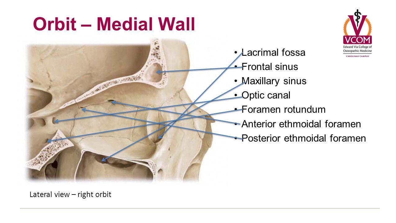 Maxillary sinus skull