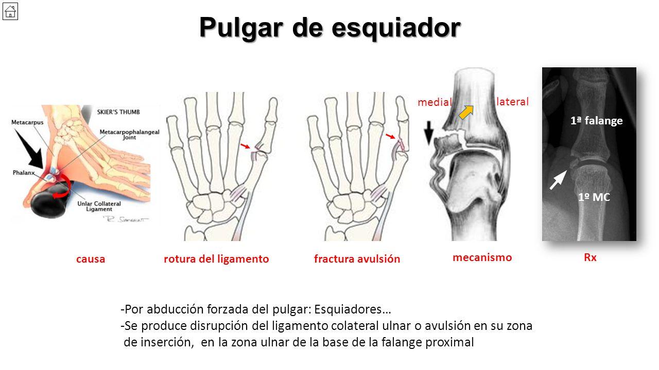 Bonito Ligamentos De La Anatomía Pulgar Regalo - Anatomía de Las ...