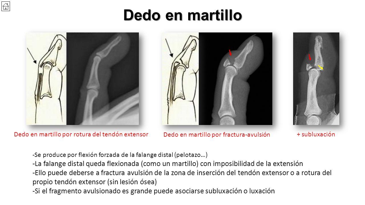 Mano 1. Anatomía - Frecuentemente afecta al primer y tercer dedos ...