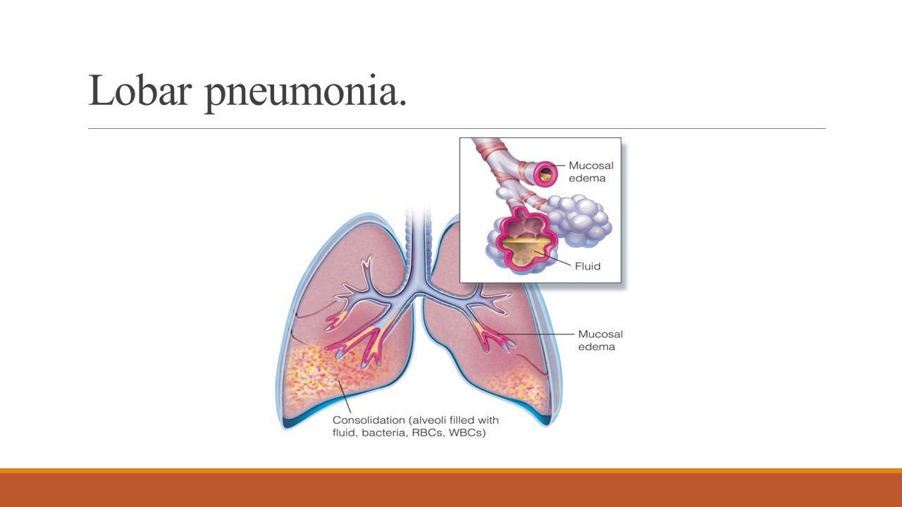 Großzügig Anatomy And Physiology Of Pneumonia Galerie - Menschliche ...