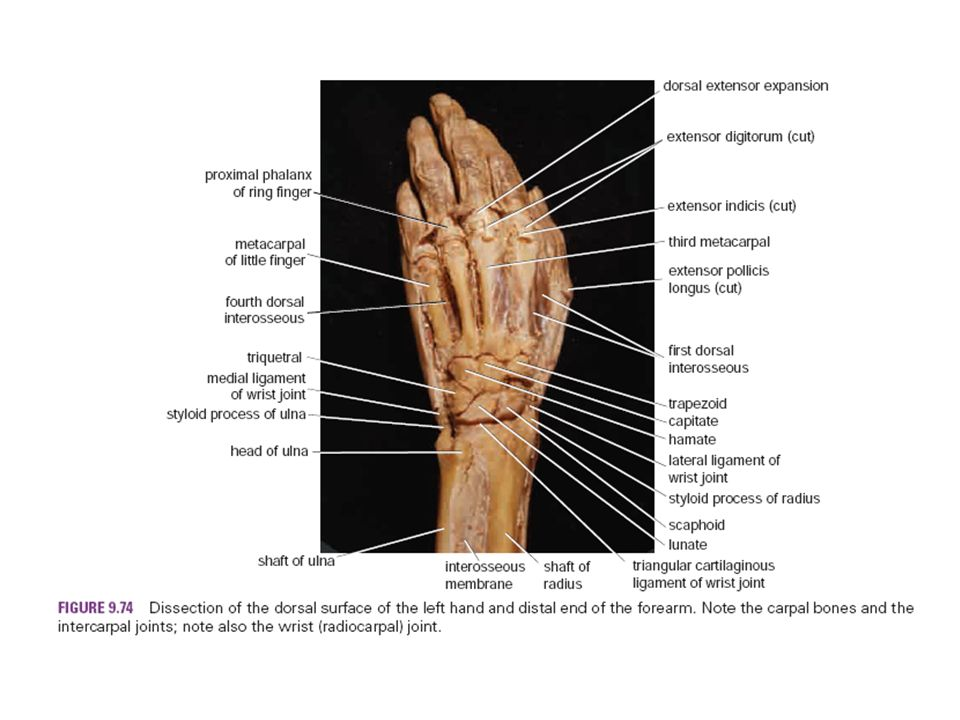 Ulnar styloid anatomy