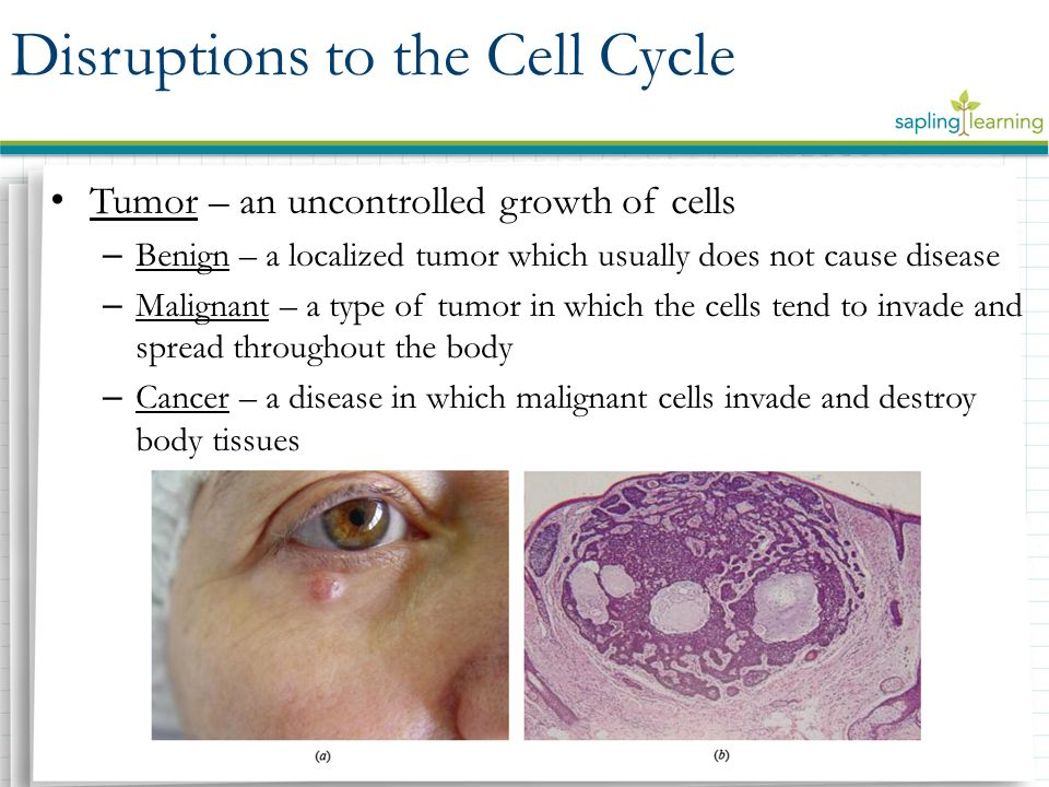 Tumor – an uncontrolled growth of cells – Benign – a localized tumor which usually does not cause disease – Malignant – a type of tumor in which the cells tend to invade and spread throughout the body – Cancer – a disease in which malignant cells invade and destroy body tissues Disruptions to the Cell Cycle