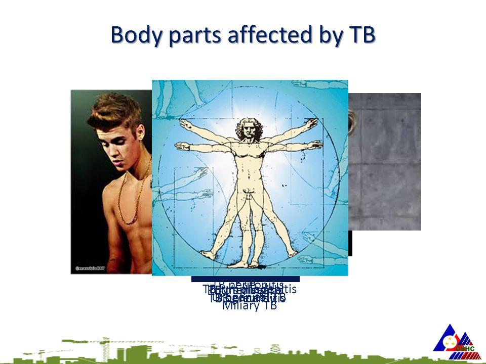 PTB TB pleurisy TB lymphadenitis Miliary TB TB pericarditis TB peritonitis TB meningitisPott's disease Urogenital TB Scrofuloderma Body parts affected by TB