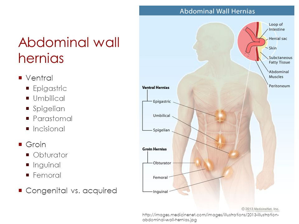 Ventral hernia anatomy 1134320 - follow4more.info