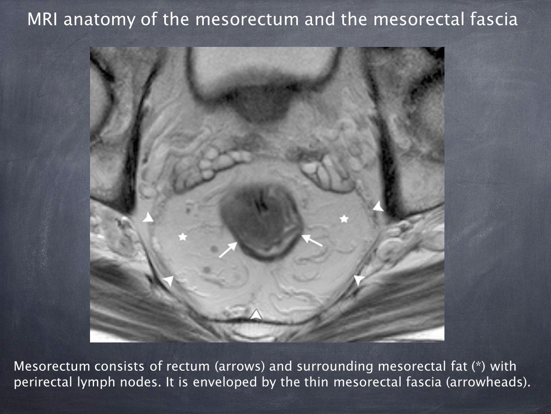 Enchanting Rectal Anatomy Mri Ornament - Physiology Of Human Body ...
