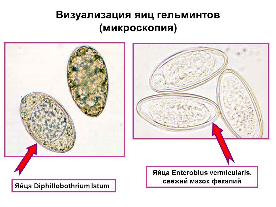 Правильно лечиться от паразитов в организме
