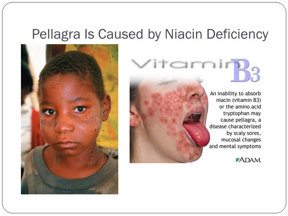 Pellagra Is Caused by Niacin Deficiency
