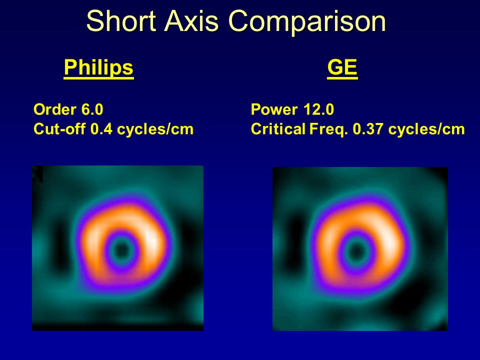 Short Axis Comparison Order 6.0 Cut-off 0.4 cycles/cm Power 12.0 Critical Freq. 0.37 cycles/cm Philips GE