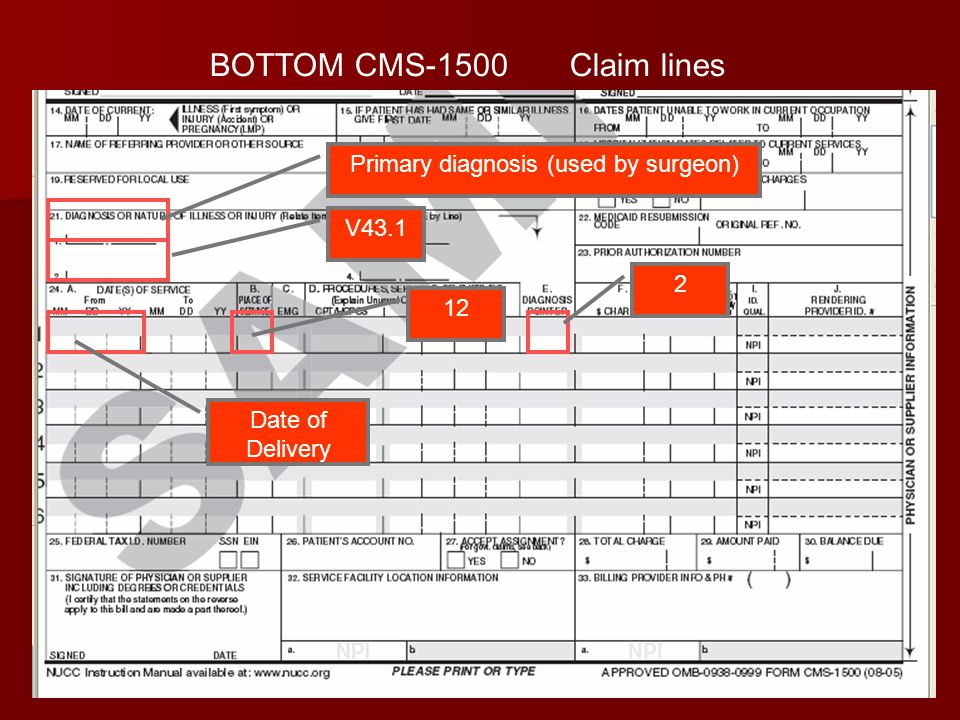 30 BOTTOM CMS-1500 Claim lines V43.1 Date of Delivery 12 Primary diagnosis (used by surgeon) 2