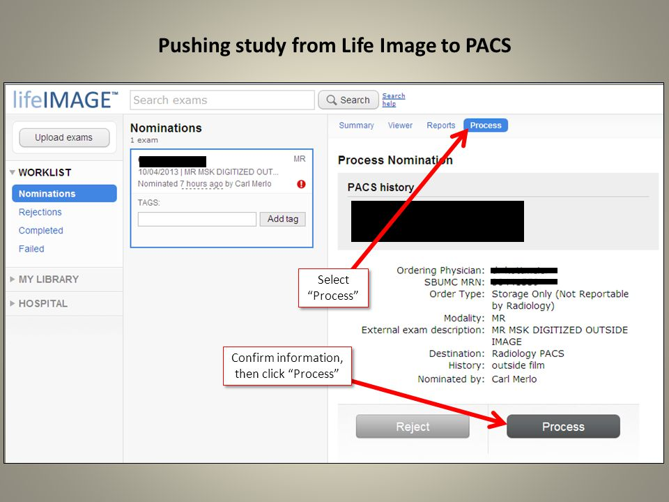 Pushing study from Life Image to PACS Select Process Confirm information, then click Process