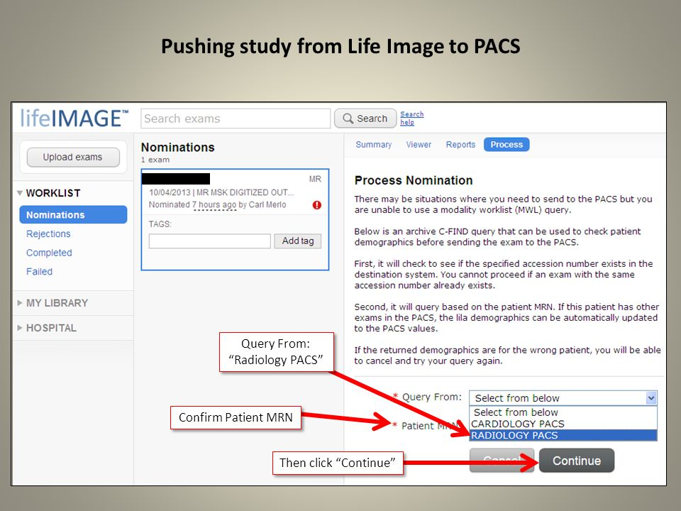 Pushing study from Life Image to PACS Query From: Radiology PACS Then click Continue Confirm Patient MRN