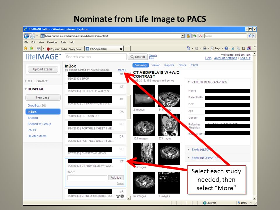 Nominate from Life Image to PACS Select each study needed, then select More