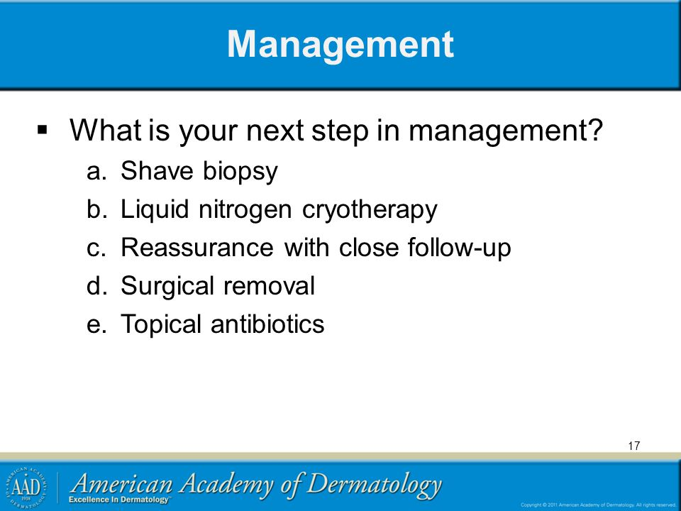 Management What is your next step in management? a.Shave biopsy b.Liquid nitrogen cryotherapy c.Reassurance with close follow-up d.Surgical removal e.