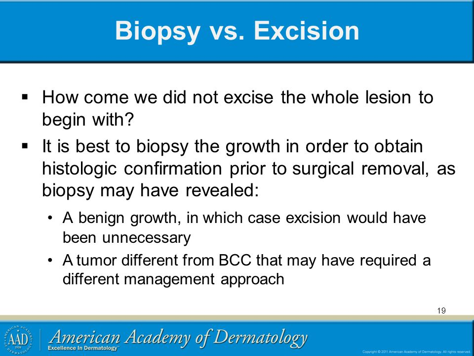 Biopsy vs. Excision How come we did not excise the whole lesion to begin with? It is best to biopsy the growth in order to obtain histologic confirmat