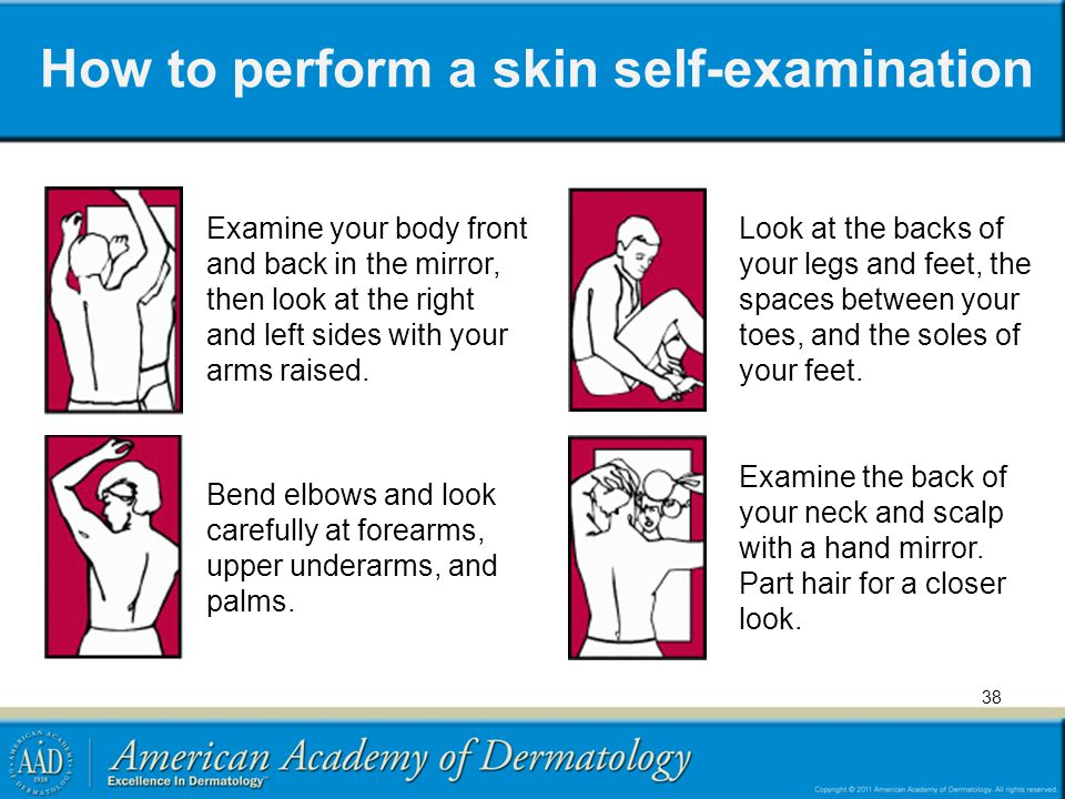 How to perform a skin self-examination 38 Examine your body front and back in the mirror, then look at the right and left sides with your arms raised.