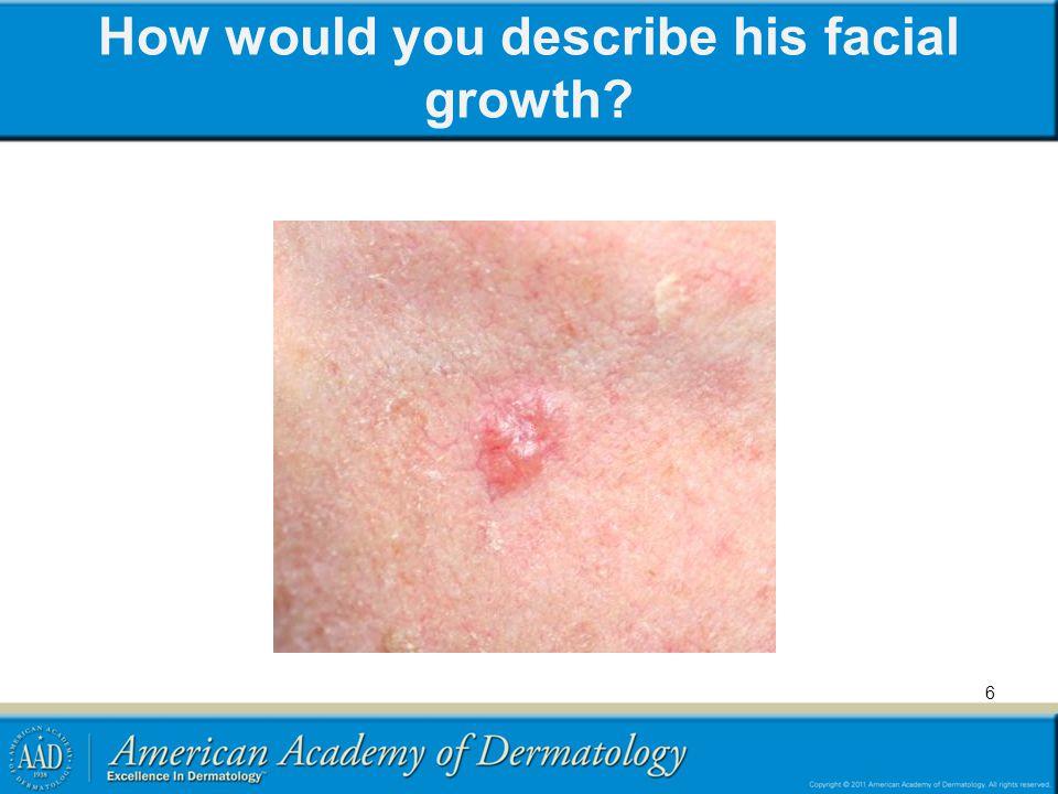 © 2009 A.Garg, MD How would you describe his facial growth.