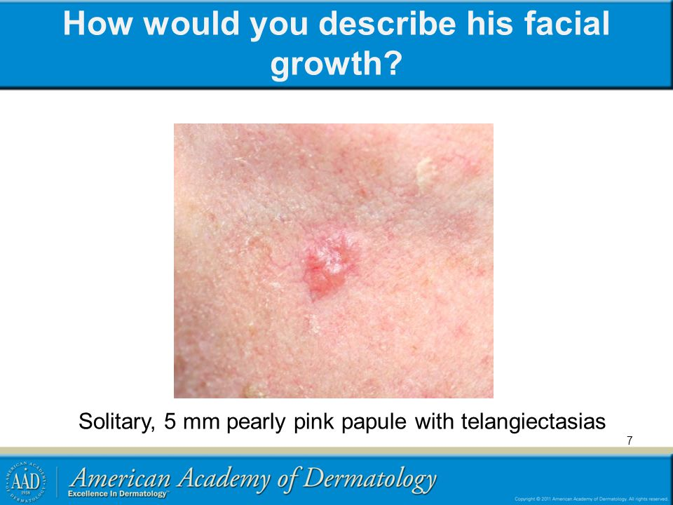 What is your differential diagnosis.