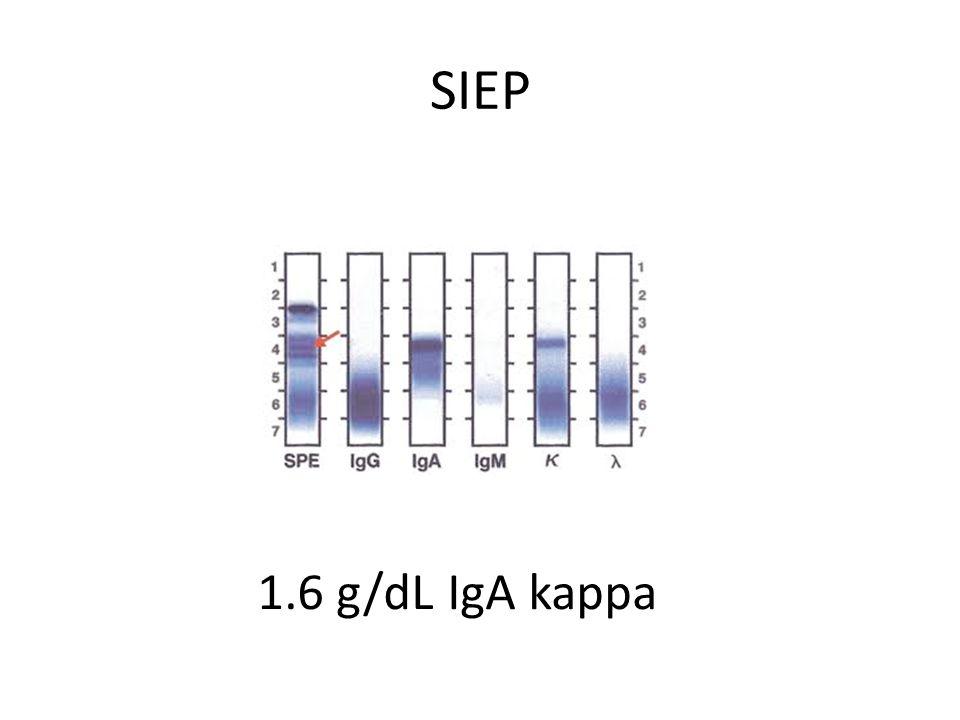 SIEP 1.6 g/dL IgA kappa
