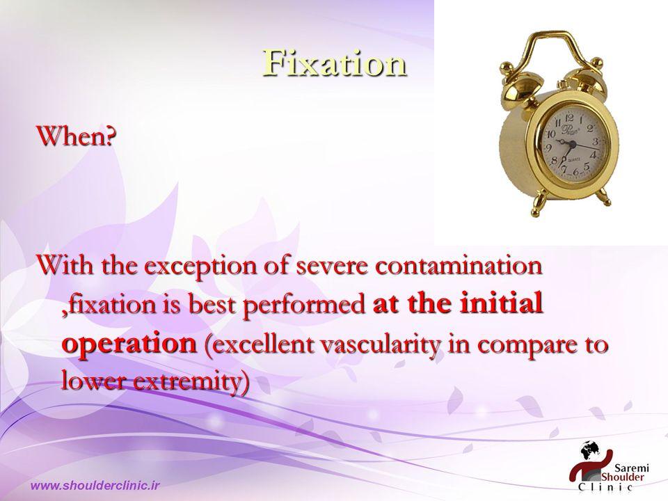 Fixation When.