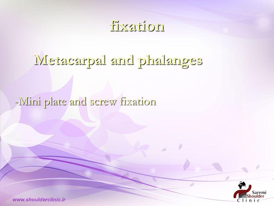 fixation Metacarpal and phalanges Metacarpal and phalanges -Mini plate and screw fixation