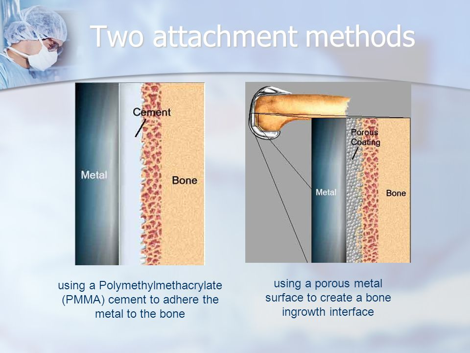 using a Polymethylmethacrylate (PMMA) cement to adhere the metal to the bone using a porous metal surface to create a bone ingrowth interface Two atta