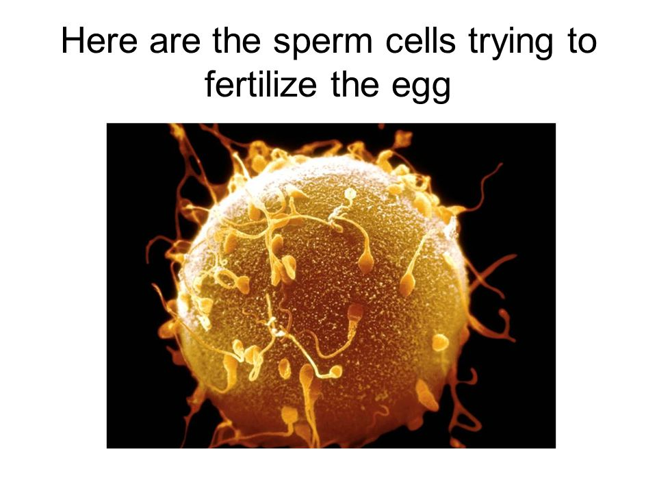 Here are the sperm cells trying to fertilize the egg