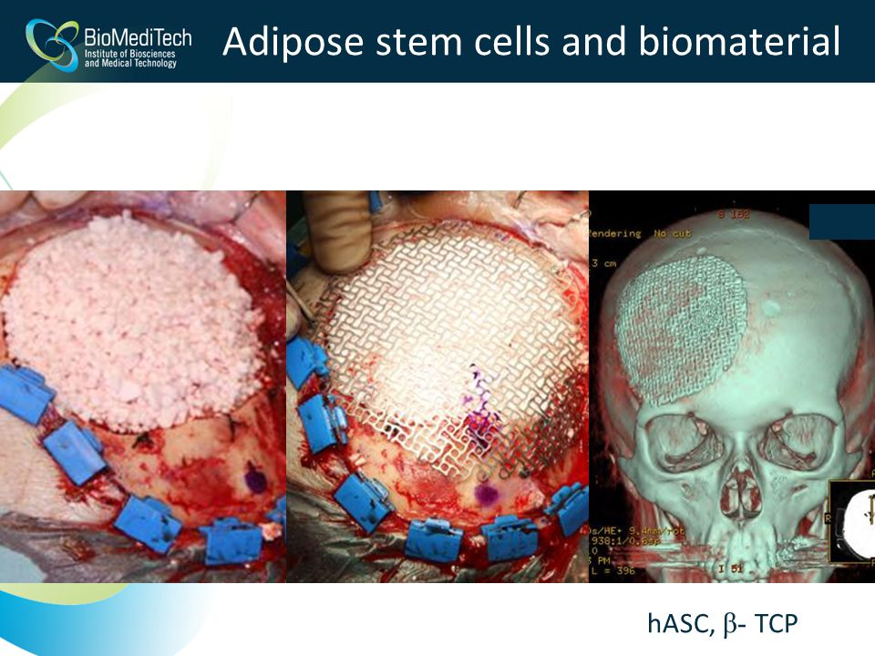Adipose stem cells and biomaterial hASC, β- TCP