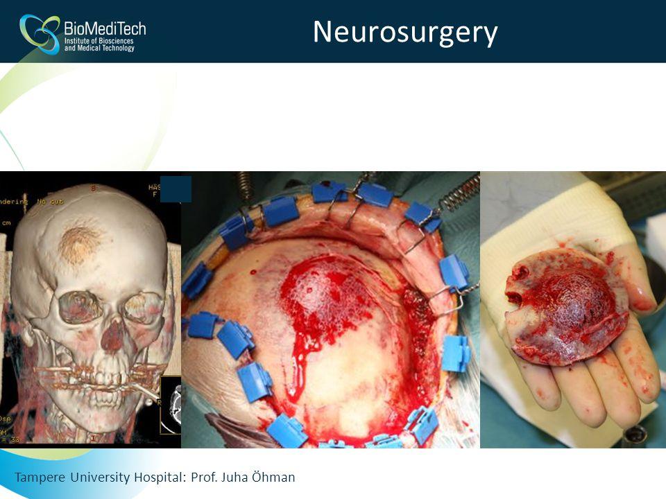 Neurosurgery Tampere University Hospital: Prof. Juha Öhman